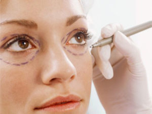 Eyelid Surgery Los Angeles and Beverly Hills, Blepharoplasy Los Angeles and Beverly Hills
