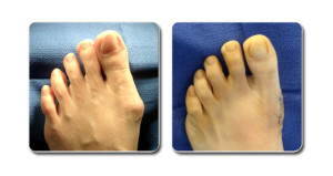 bunion-surgery-patient
