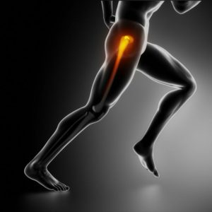 Hip Arthroscopy in Los Angeles